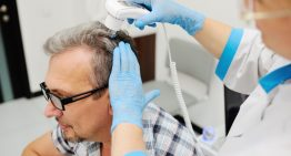 Learn about Hair Transplant Services before Undergoing the Treatment