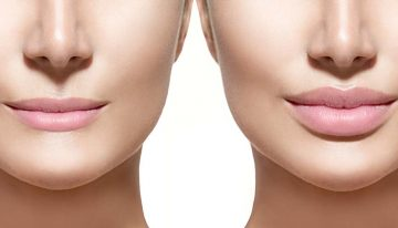Get the Look You Long for With the Help of Plastic and Cosmetic Surgeries in Houston