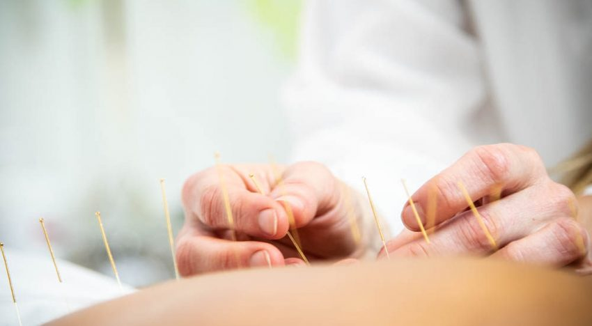 Alternative Health: How Acupuncture Works