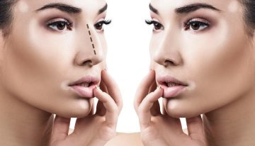 Improve your Physical Appearance with Rhinoplasty