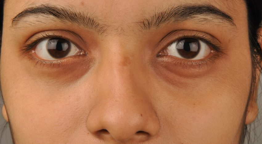 Dark Eye Circle Removal Tips in Singapore