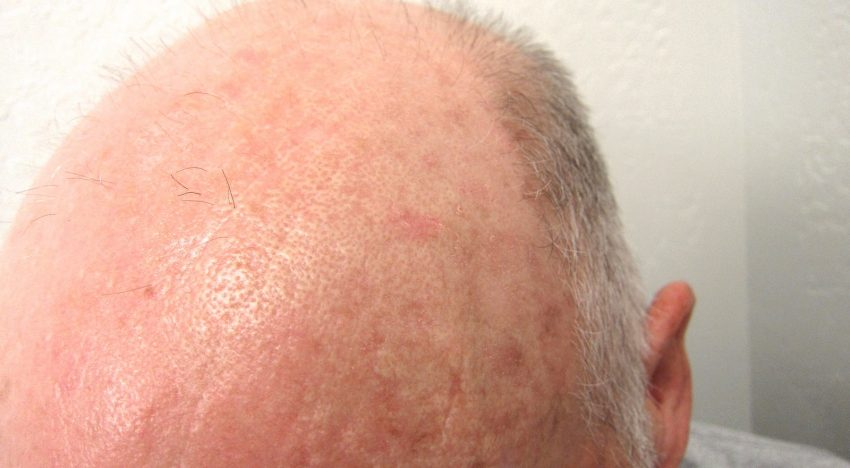 How To Find A Good Quality Practitioner For Your Scalp Micropigmentation?